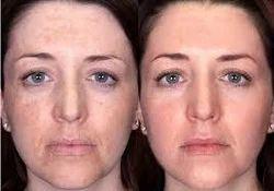 Chemical Peeling Melasma Treatments