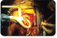 Department of Cardio Thoracic Surgery