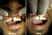 Teeth Restorations