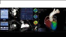 Quantitative Diagnostic Imaging With Syngo