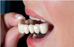 Bridge Work Dental Treatment Services