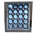 Aluminum LED X Ray View Box