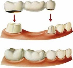 Crowns and Bridges Dental Treatment Services