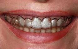 Gum surgeries