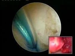 Hysteroscopic Tubal Canulation