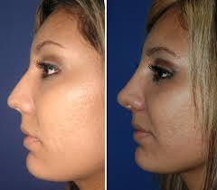 Nose Surgery Service