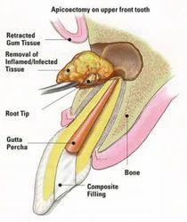 Endodontic Surgeries