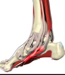 Ankle And Heel Pain Physiotherapy