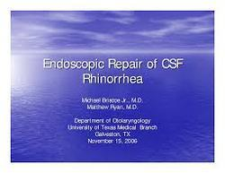 Endoscopic CSF Rhinorrhoea Repair