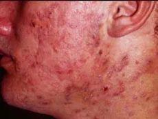 Acne / Pimples