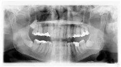 Full Mouth DigitalX-Ra ys (OPG)