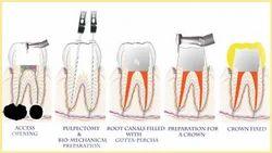Endodontology Dental Treatment Services