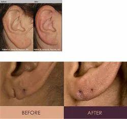 Ear Lobes Surgery
