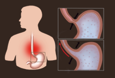 Gerd & Hiatal Hernia Surgery, लैप्रोस्कोपिक