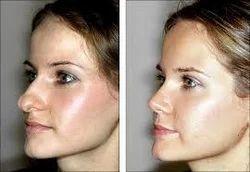 Rhinoplasty Cosmetic Surgery Services Dr Souvik Adhikari Ms Mch Kolkata Id 6977607130