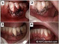 Gum Surgeries Treatment