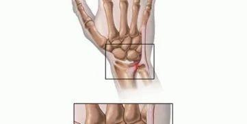 Triangular Fibrocartilage Complex Tfcc Injury In Kannur Payyannur