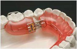 Myofunctional Orthodontics Treatment Service