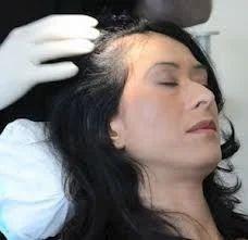 Hairfall Treatment Service