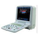 Portable Color Doppler Ultrasound Scanner