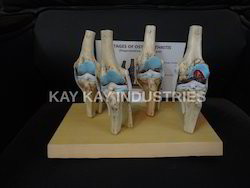 4 Stage Knee Arthritis Models
