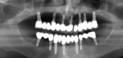 Full Mouth Iimplants Treatment Service