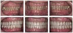 Smile Makeover and Full Mouth Rehabilitation