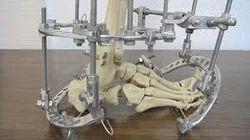 Limb Reconstruction Orthopedic Treatment