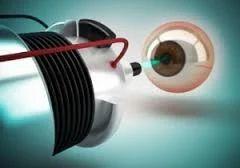 Bladeless Laser Eye Surgery