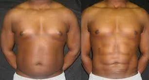 Body Procedures - Calf Augmentation Manufacturer from Chandigarh