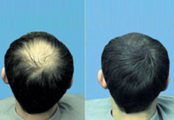 Baldness and hair loss treatment services service provider hair hair loss pmusecretfo Choice Image