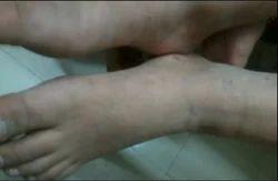 Male Skin Disease Treatment Services