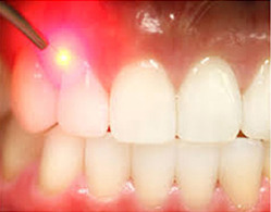 Oral Prophylaxis(Scaling)