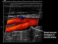 Doppler Ultrasound Services