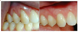Cosmetic Gum Surgery