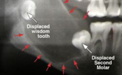 Tooth & Jaw Fracture