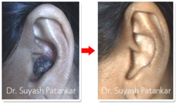 Birthmarks, Tatoo Removal & Warts (Radiosurgery)