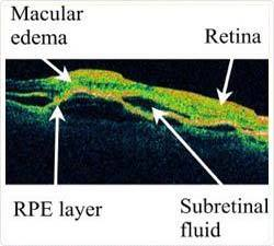 What is The Retina