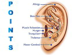 Auricular Acupuncture or Ear Acupuncture in Andheri West