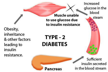 Diabetes Treatment with Homeopathy in Koregaon Park, Pune