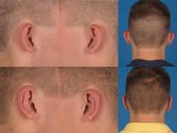 Otoplasty Ear Surgery Treatment in Dharam Singh Circle