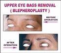 Eye Brow Shaping - Eye Brow Lift