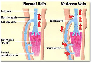 varicose veins treatment prices