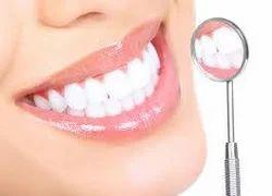Teeth Whitening Service