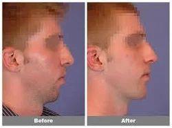 facial-implant-company