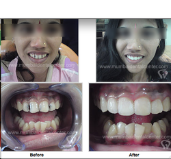 Teeth Fillings Services in India