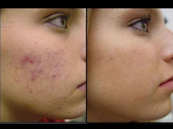 Acne Homeopathy Treatment