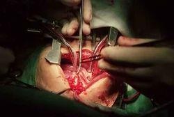 Paediatrics Surgery