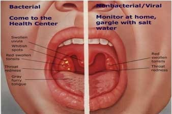 tonsils sri nagar colony hyderabad surecare homoepathy id