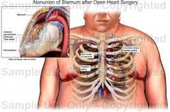 Open Heart Surgery In India